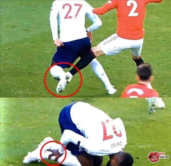 ảnh chế bóng đá